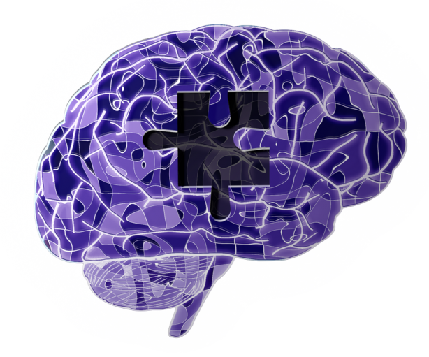 brainnew2